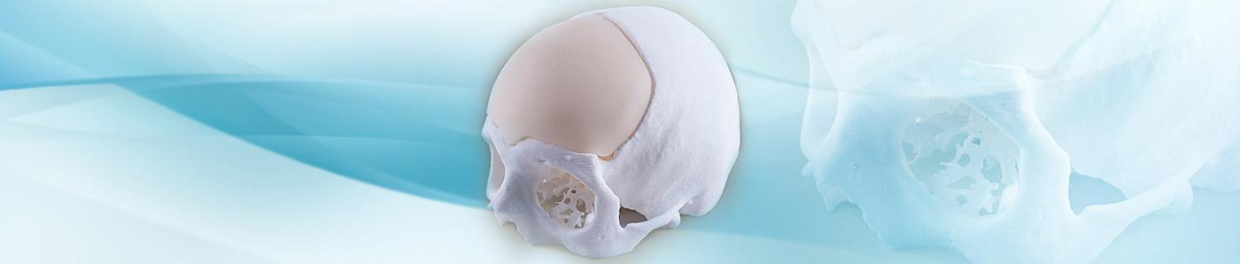 Ricostruzione di difetti ossei TECRES<sup>®</sup>