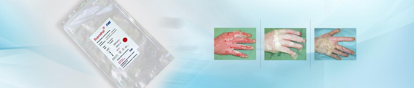 SUPRATHEL<sup>®</sup>Dermal Substitute
