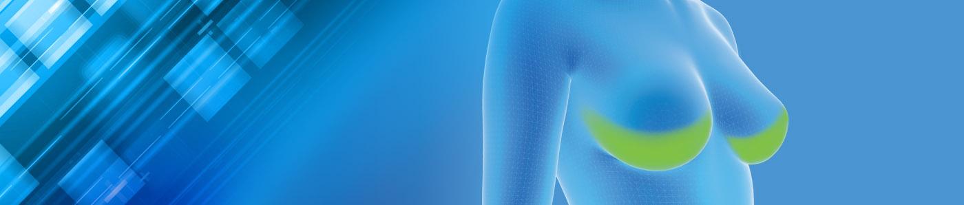 Matrici tissutali per Ricostruzione Mammaria
